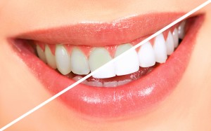 Perth Australia Teeth whitening